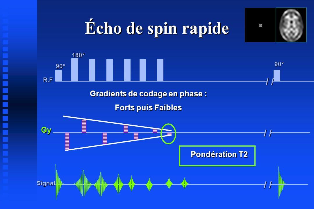 R.F Gy Signal 90° 180° / / 90° Écho de spin rapide Pondération T2 Gradients de codage en phase : Forts puis Faibles