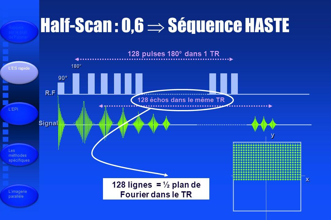 Half-Scan : 0,6 Séquence HASTE R.F Signal 90° 180° 128 pulses 180° dans 1 TR 128 échos dans le même TR 128 lignes = ½ plan de Fourier dans le TR x y Rappels sur le plan de Fourrier LES rapide LEPI Les méthodes spécifiques Limagerie parallèle