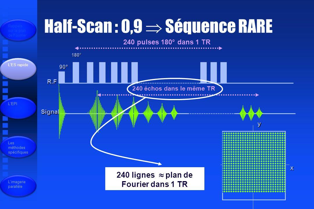 R.F Signal 90° 180° 240 pulses 180° dans 1 TR 240 échos dans le même TR 240 lignes plan de Fourier dans 1 TR x y Half-Scan : 0,9 Séquence RARE Rappels sur le plan de Fourrier LES rapide LEPI Les méthodes spécifiques Limagerie parallèle