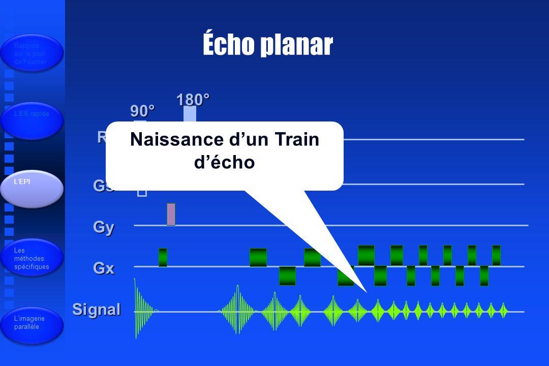 Écho planar R.F Gs Gy Gx Signal 90° 180° Rappels sur le plan de Fourrier LES rapide LEPI Les méthodes spécifiques Limagerie parallèle Naissance dun Train décho