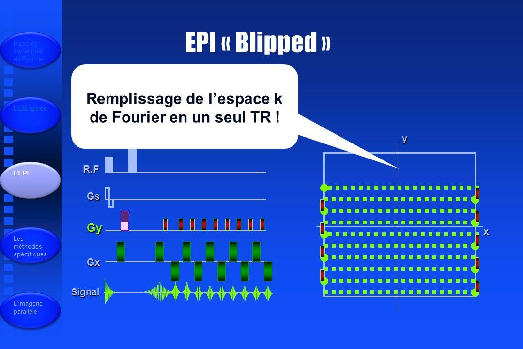 EPI « Blipped » R.F Gs Gy Gx Signal x y Remplissage de lespace k de Fourier en un seul TR .