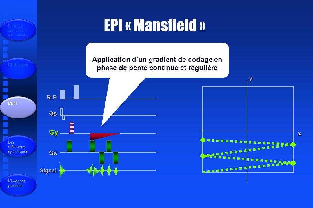EPI « Mansfield » R.F Gs Gy Gx Signal x y Application dun gradient de codage en phase de pente continue et régulière Rappels sur le plan de Fourrier LES rapide LEPI Les méthodes spécifiques Limagerie parallèle