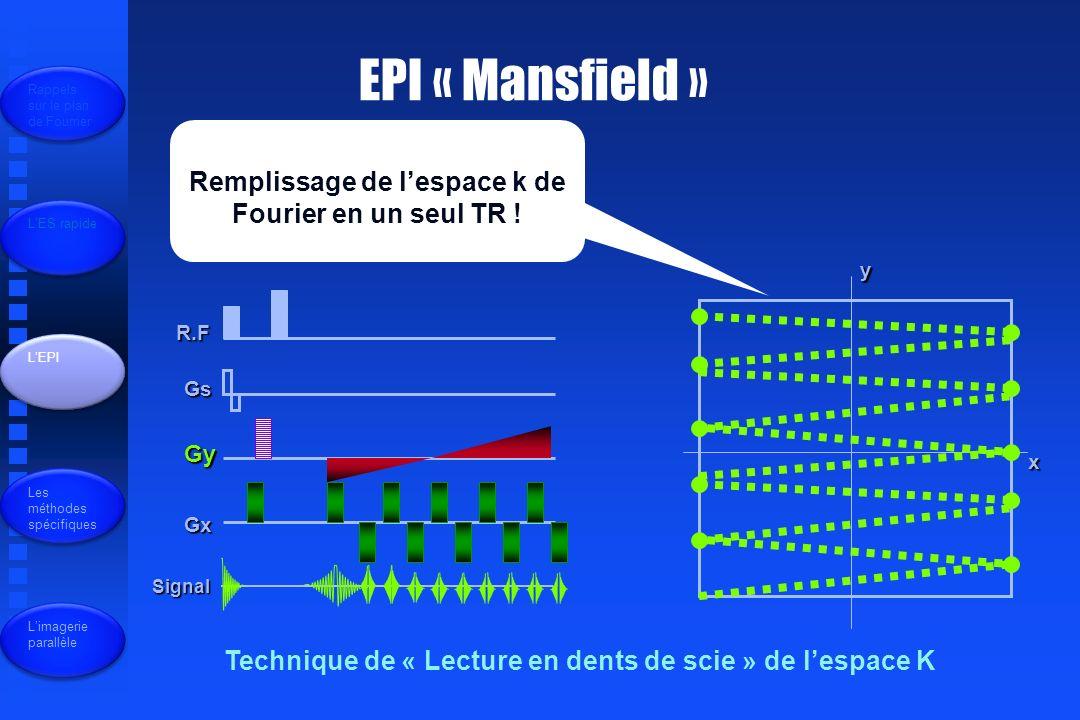EPI « Mansfield » R.F Gs Gy Gx Signal x y Remplissage de lespace k de Fourier en un seul TR .