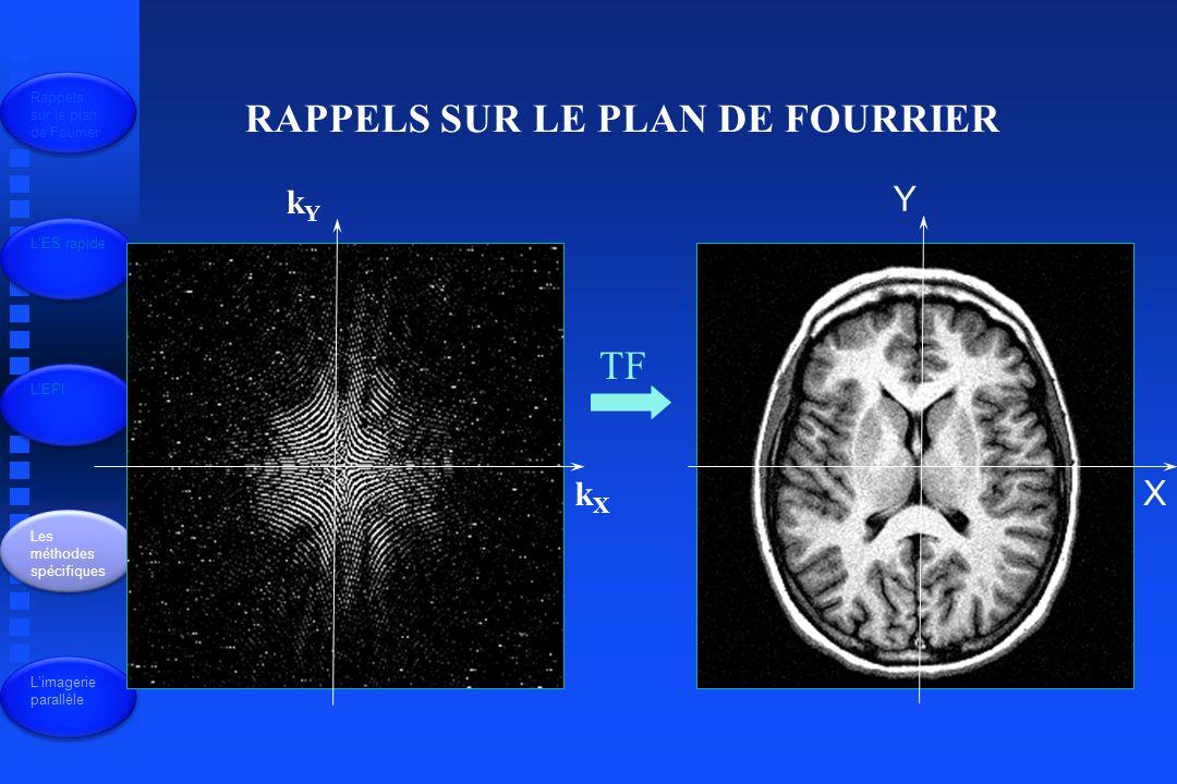 Echo Planar imaging (EPI) lire tout le plan de Fourier après une seule impulsion PhilipsSiemensGEHitachiToshiba Echo planar - ESSE-EPIEPI SESE EPI Echo planar - EG FFE-EPI TFE-EPI EPI Perf EPIFI GRE EPI SG-EPIFE-EPI Rappels sur le plan de Fourrier LES rapide LEPI Les méthodes spécifiques Limagerie parallèle