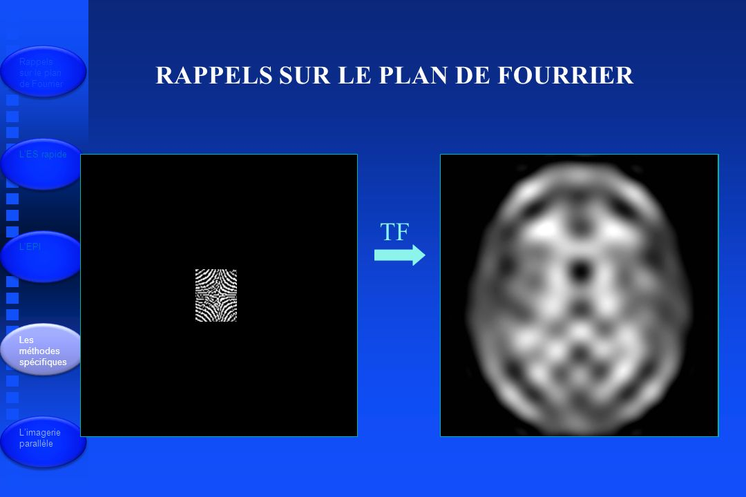 Rappels sur le plan de Fourrier LES rapide LEPI Les méthodes spécifiques Limagerie parallèle Imagerie spirale Jusquà 100 images/sec Application : perfusion myocardique