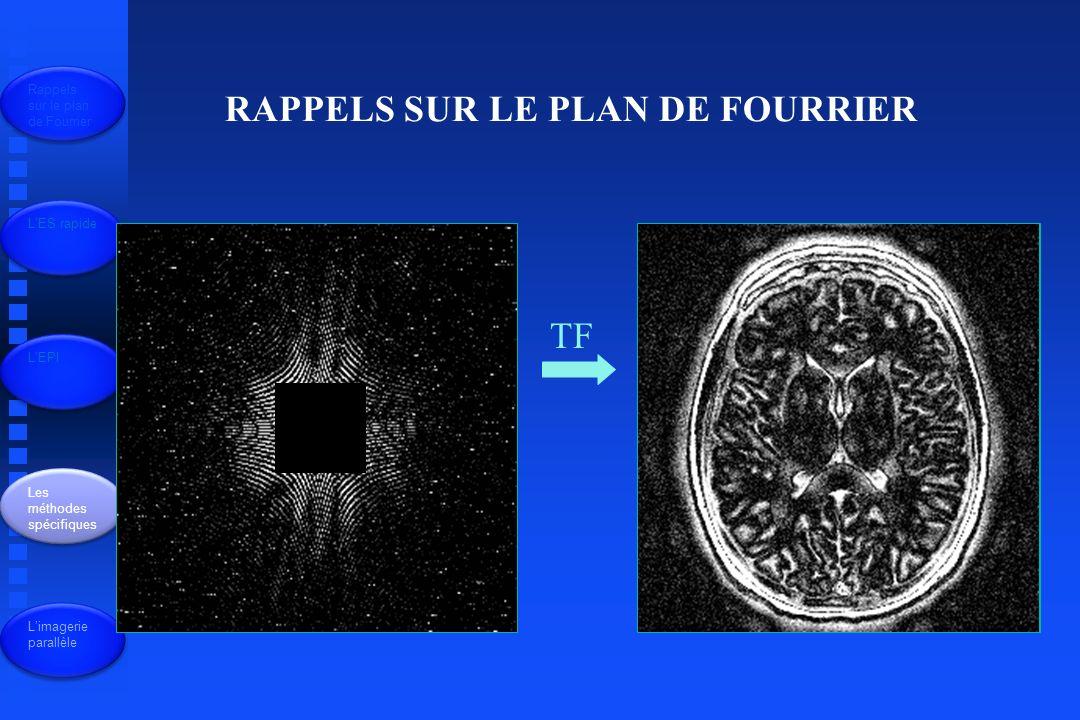 Lécho de spin « classique » R.F Gs Gy Gx Signal 90 ° FID x y Apparition du signal: on se place au centre du plan de Fourier Rappels sur le plan de Fourrier LES rapide LEPI Les méthodes spécifiques Limagerie parallèle