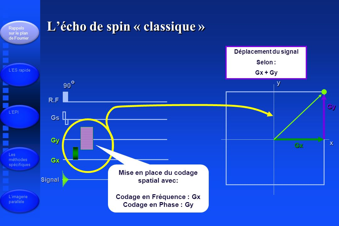 R.F Gs Gy Gx Signal 90 ° x y Déplacement du signal Selon : Gx + Gy Gx Gy Mise en place du codage spatial avec: Codage en Fréquence : Gx Codage en Phase : Gy Lécho de spin « classique » Rappels sur le plan de Fourrier LES rapide LEPI Les méthodes spécifiques Limagerie parallèle