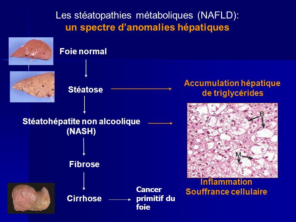 Foie normal Fibrose Cirrhose Stéatose Accumulation hépatique de triglycérides Stéatohépatite non alcoolique (NASH) Inflammation Souffrance cellulaire