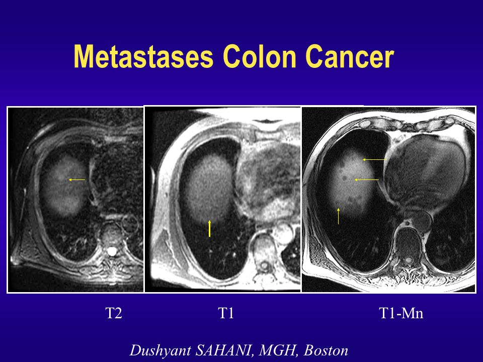 Metastases Colon Cancer T2 T1 T1-Mn Dushyant SAHANI, MGH, Boston