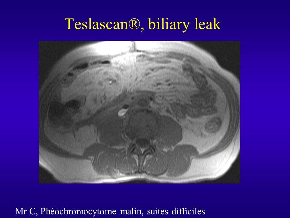 Teslascan®, biliary leak Mr C, Phéochromocytome malin, suites difficiles