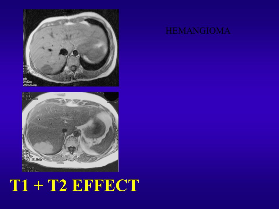 T1 + T2 EFFECT HEMANGIOMA