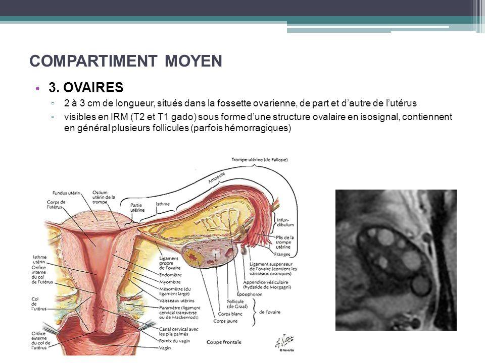COMPARTIMENT MOYEN 3. OVAIRES 2 à 3 cm de longueur, situés dans la fossette ovarienne, de part et dautre de lutérus visibles en IRM (T2 et T1 gado) so