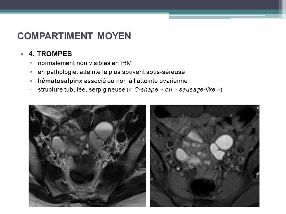 COMPARTIMENT MOYEN 4. TROMPES normalement non visibles en IRM en pathologie: atteinte le plus souvent sous-séreuse hématosalpinx associé ou non à latt