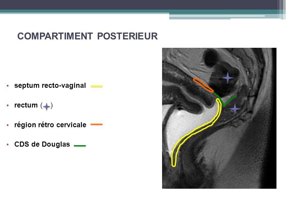 COMPARTIMENT POSTERIEUR septum recto-vaginal rectum ( ) région rétro cervicale CDS de Douglas
