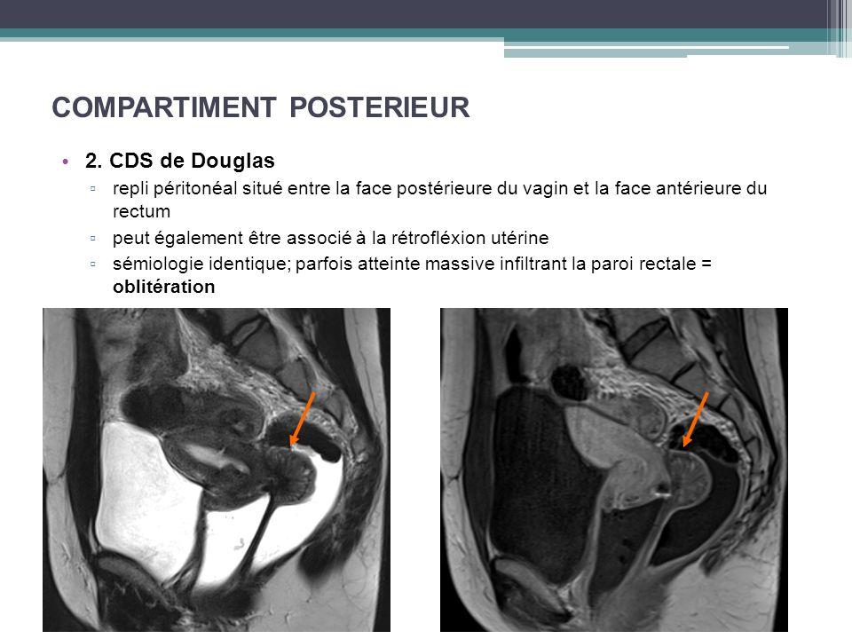 COMPARTIMENT POSTERIEUR 2. CDS de Douglas repli péritonéal situé entre la face postérieure du vagin et la face antérieure du rectum peut également êtr