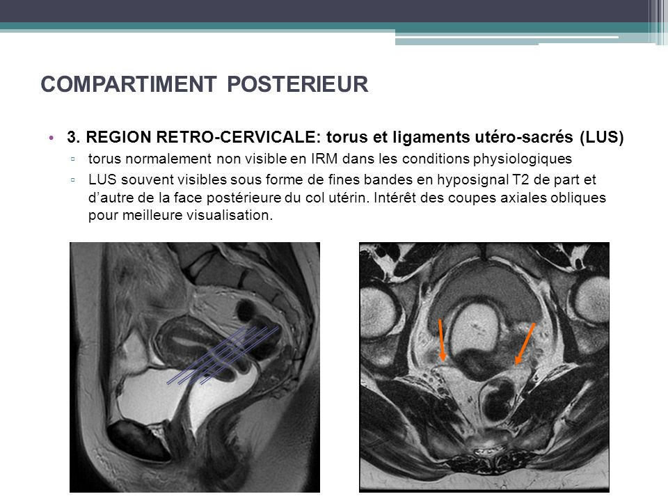 COMPARTIMENT POSTERIEUR 3. REGION RETRO-CERVICALE: torus et ligaments utéro-sacrés (LUS) torus normalement non visible en IRM dans les conditions phys