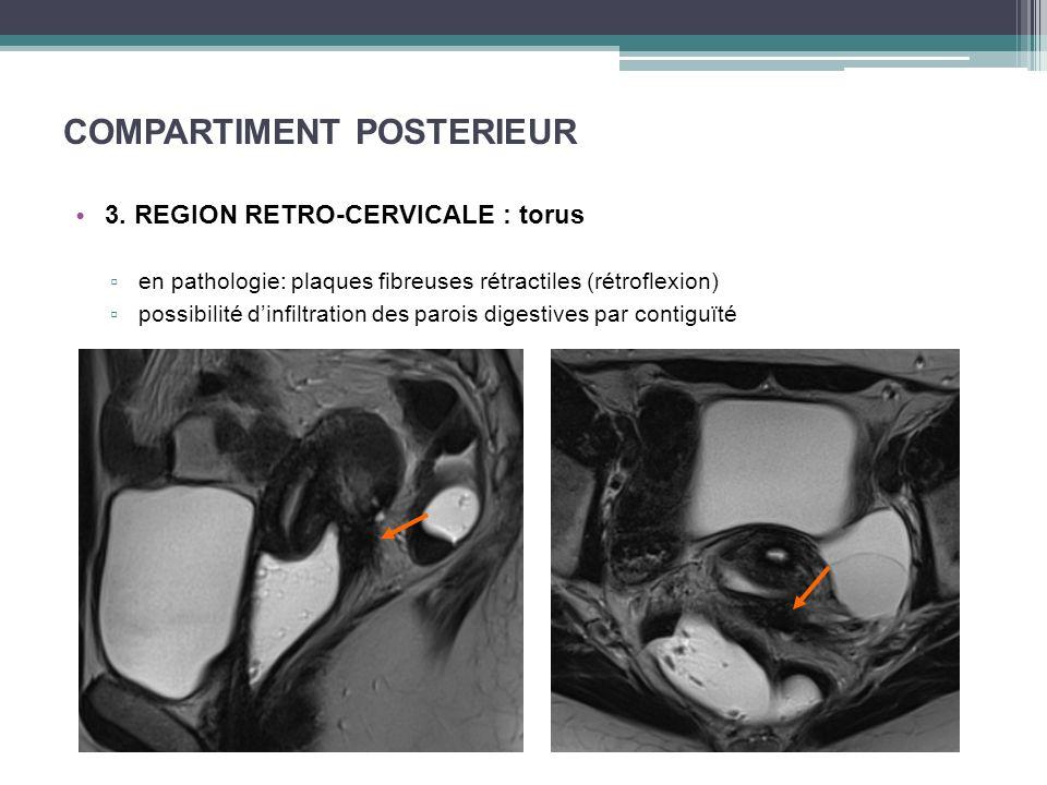 COMPARTIMENT POSTERIEUR 3. REGION RETRO-CERVICALE : torus en pathologie: plaques fibreuses rétractiles (rétroflexion) possibilité dinfiltration des pa
