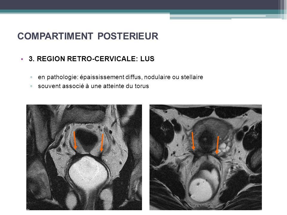 COMPARTIMENT POSTERIEUR 3. REGION RETRO-CERVICALE: LUS en pathologie: épaississement diffus, nodulaire ou stellaire souvent associé à une atteinte du