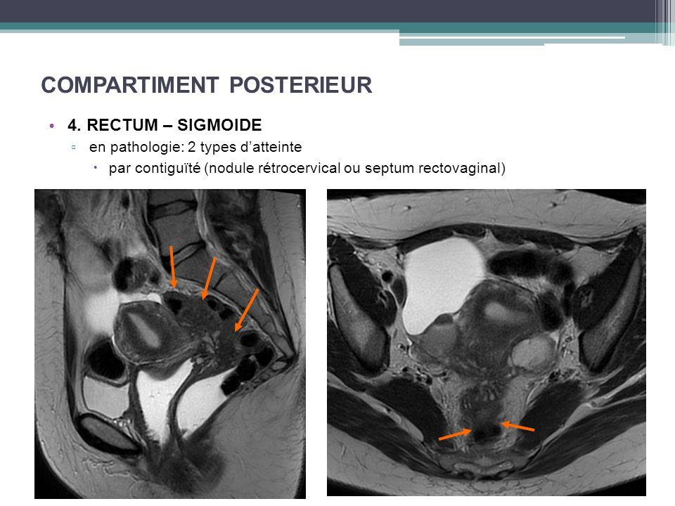 COMPARTIMENT POSTERIEUR 4. RECTUM – SIGMOIDE en pathologie: 2 types datteinte par contiguïté (nodule rétrocervical ou septum rectovaginal)