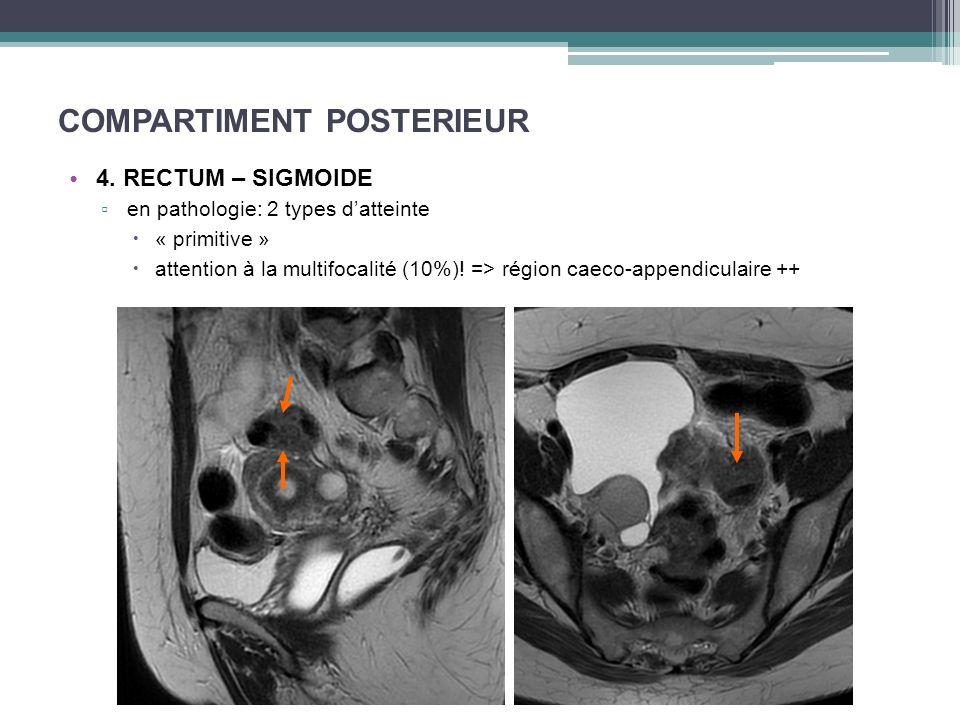 COMPARTIMENT POSTERIEUR 4. RECTUM – SIGMOIDE en pathologie: 2 types datteinte « primitive » attention à la multifocalité (10%)! => région caeco-append