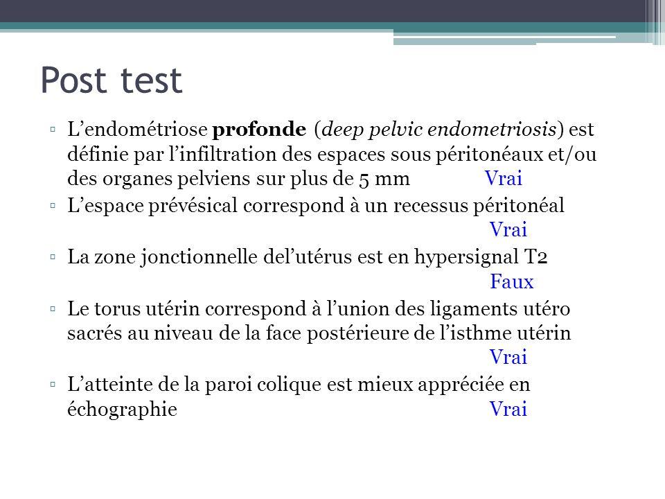 Post test Lendométriose profonde (deep pelvic endometriosis) est définie par linfiltration des espaces sous péritonéaux et/ou des organes pelviens sur