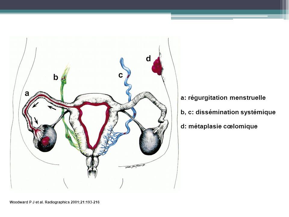 a: régurgitation menstruelle b, c: dissémination systémique d: métaplasie cœlomique Woodward P J et al. Radiographics 2001;21:193-216