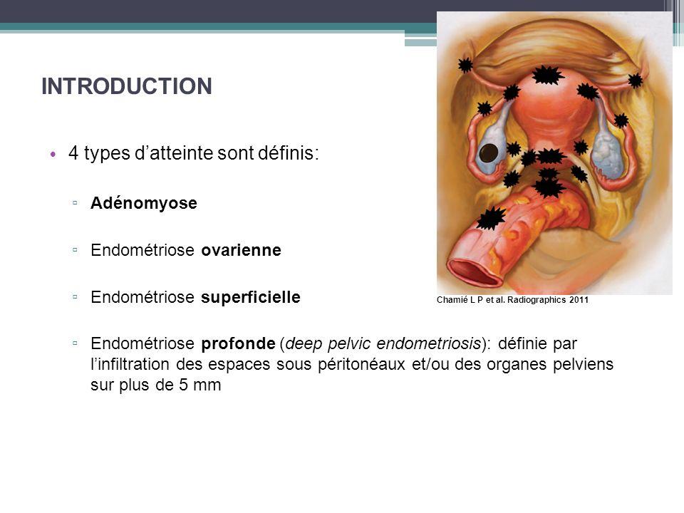 INTRODUCTION 4 types datteinte sont définis: Adénomyose Endométriose ovarienne Endométriose superficielle Endométriose profonde (deep pelvic endometri