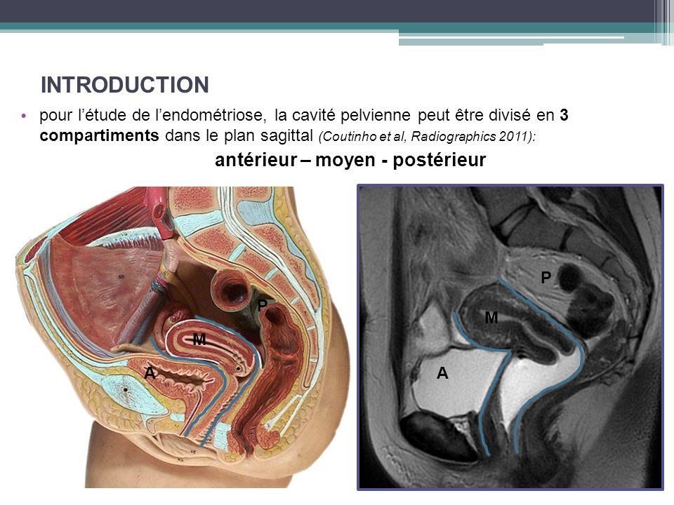 INTRODUCTION pour létude de lendométriose, la cavité pelvienne peut être divisé en 3 compartiments dans le plan sagittal (Coutinho et al, Radiographic