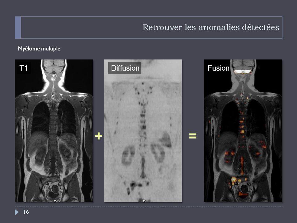 Retrouver les anomalies détectées Myélome multiple 16 T1DiffusionFusion