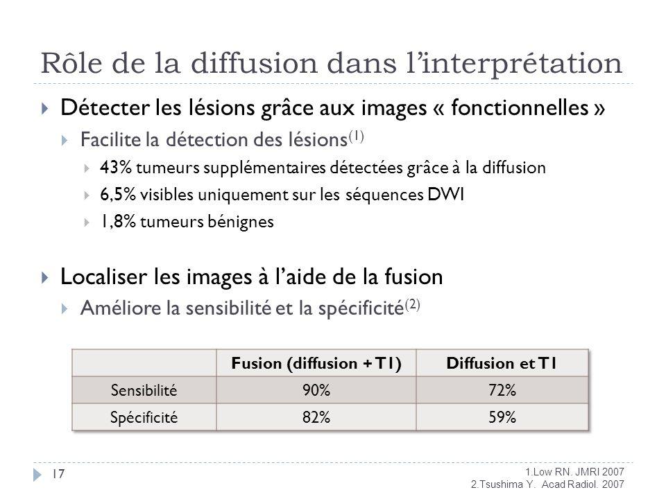 Rôle de la diffusion dans linterprétation 17 Détecter les lésions grâce aux images « fonctionnelles » Facilite la détection des lésions (1) 43% tumeur