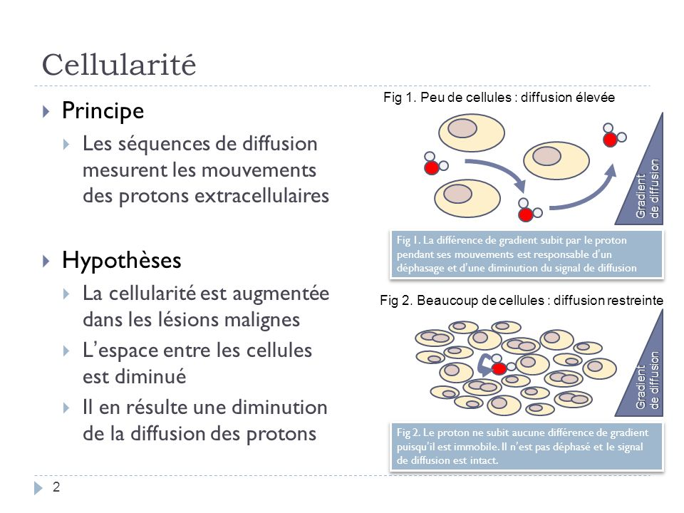 Cellularité Principe Les séquences de diffusion mesurent les mouvements des protons extracellulaires Hypothèses La cellularité est augmentée dans les