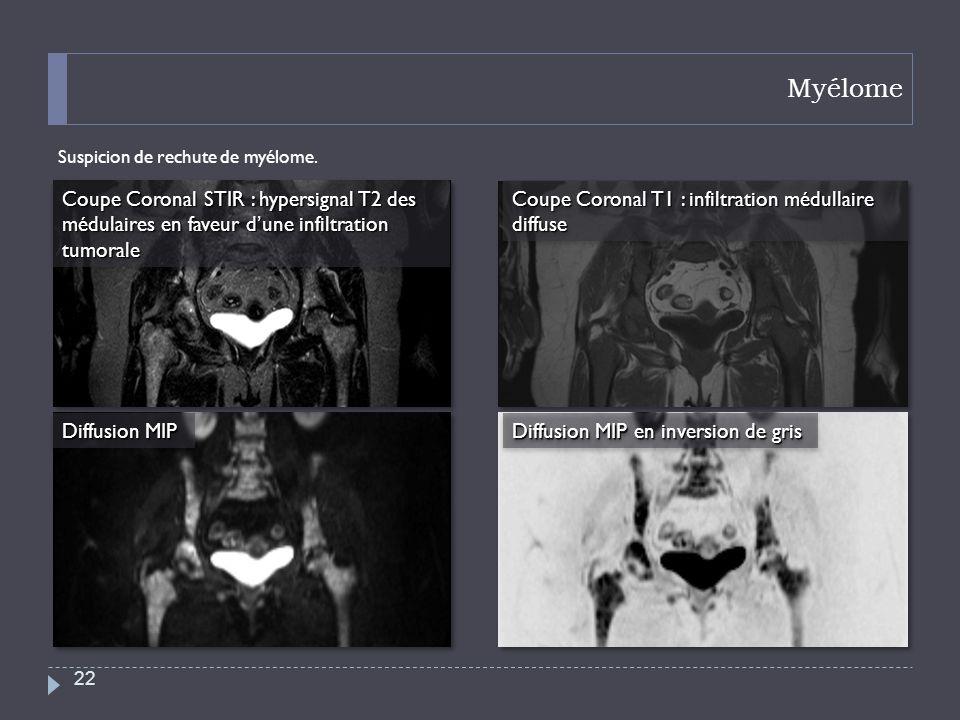 Myélome Suspicion de rechute de myélome. 22 Coupe Coronal STIR : hypersignal T2 des médulaires en faveur dune infiltration tumorale Coupe Coronal T1 :