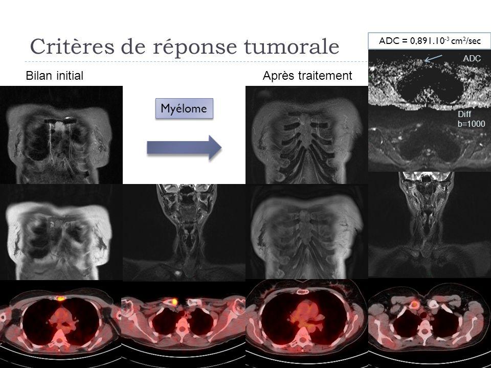 Critères de réponse tumorale 25 Diff b=1000 ADC Bilan initialAprès traitement Myélome ADC = 0,891.10 -3 cm 2 /sec