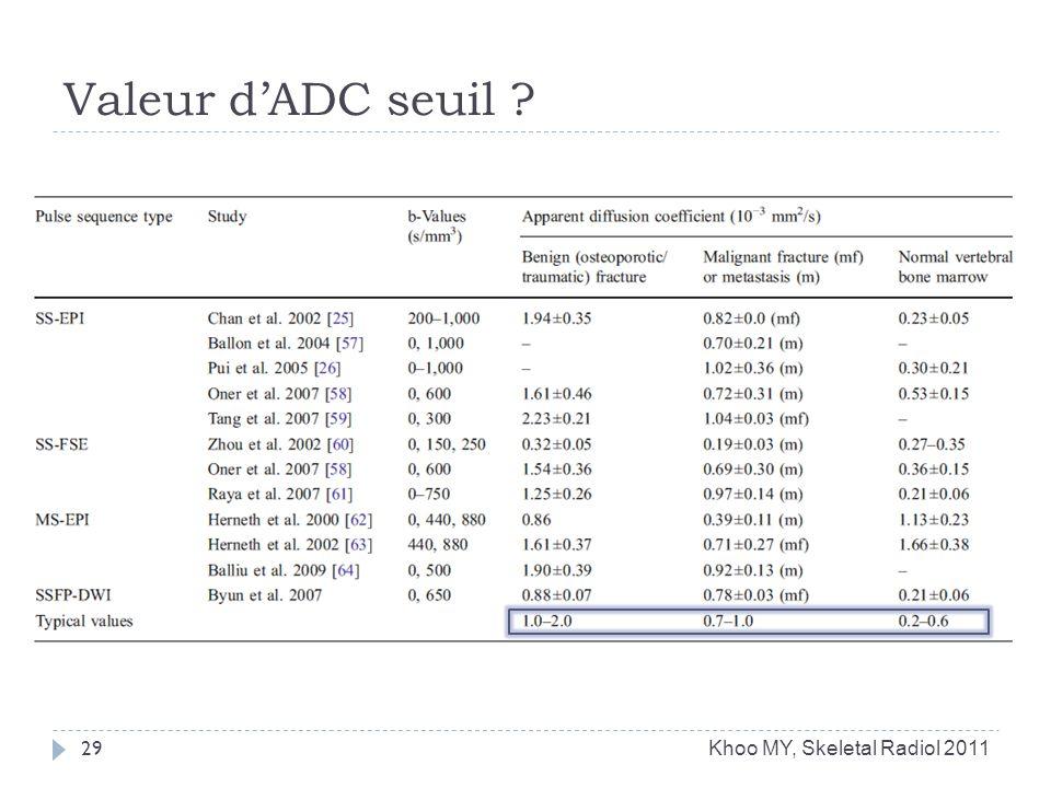 Valeur dADC seuil ? 29 Khoo MY, Skeletal Radiol 2011