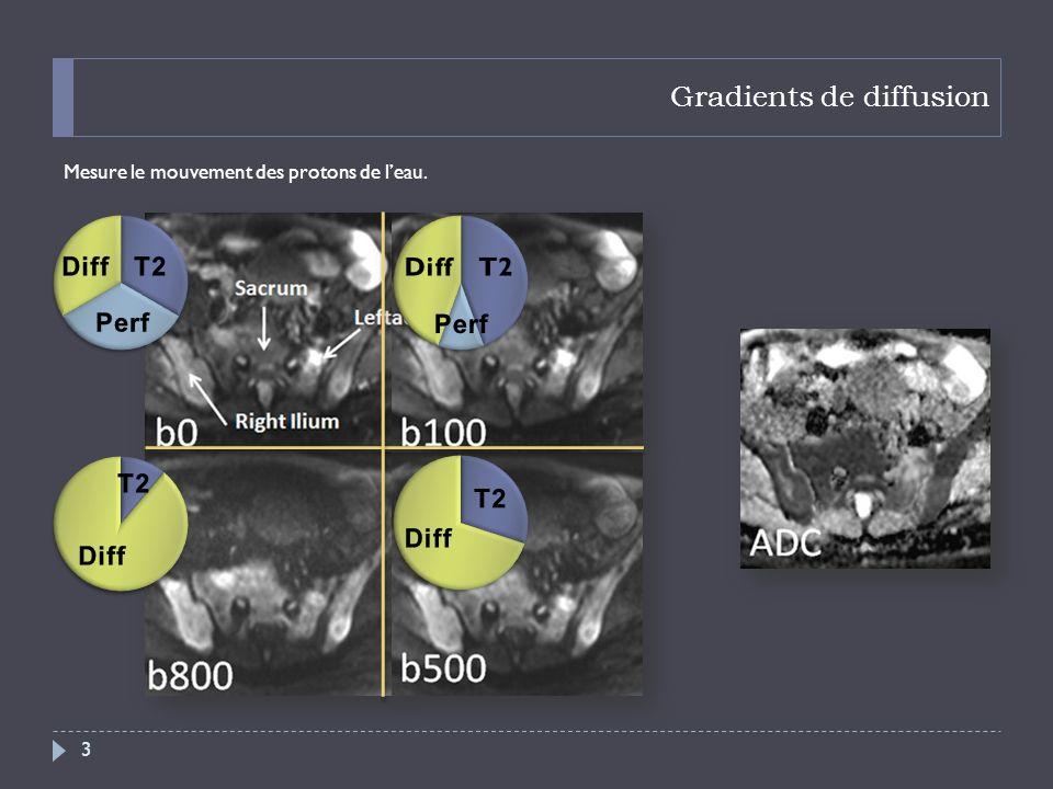 Pièges en diffusion « SuperScan » 34 Coronal T1 Gado FS Coronal T1 Coronal T2 Coronal Diffusion