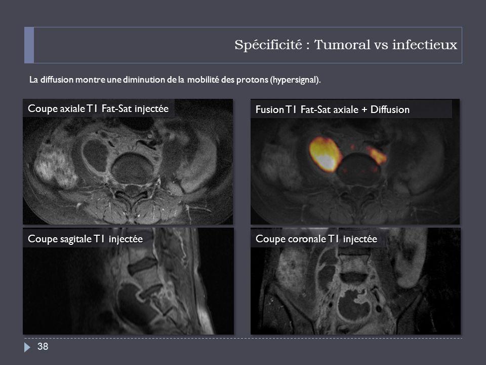 Spécificité : Tumoral vs infectieux La diffusion montre une diminution de la mobilité des protons (hypersignal). 38 Coupe axiale T1 Fat-Sat injectée C