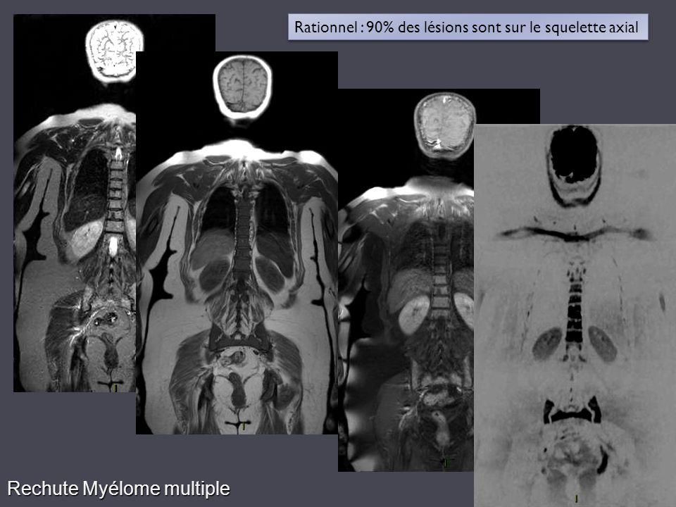 Rechute Myélome multiple Rationnel : 90% des lésions sont sur le squelette axial