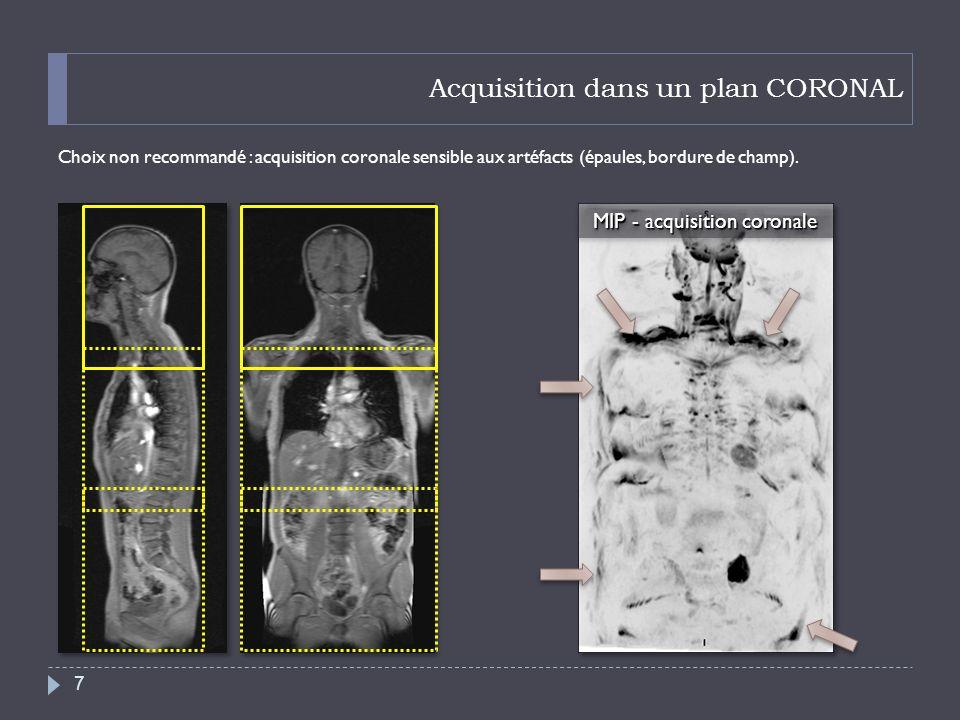 Acquisition dans un plan CORONAL Choix non recommandé : acquisition coronale sensible aux artéfacts (épaules, bordure de champ). MIP - acquisition cor