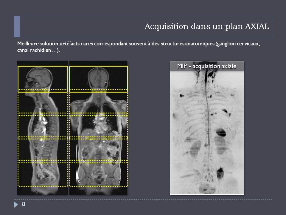 Acquisition dans un plan AXIAL Meilleure solution, artéfacts rares correspondant souvent à des structures anatomiques (ganglion cervicaux, canal rachi