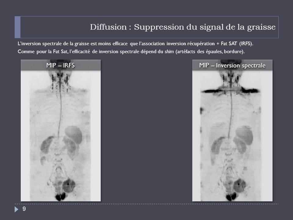 Diffusion : Suppression du signal de la graisse Linversion spectrale de la graisse est moins efficace que lassociation inversion récupération + Fat SA
