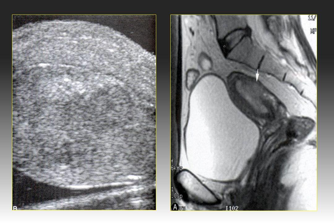 IRM et cancer de lendomètre 42 Images fortement évocatrices de cancer de lendomètre