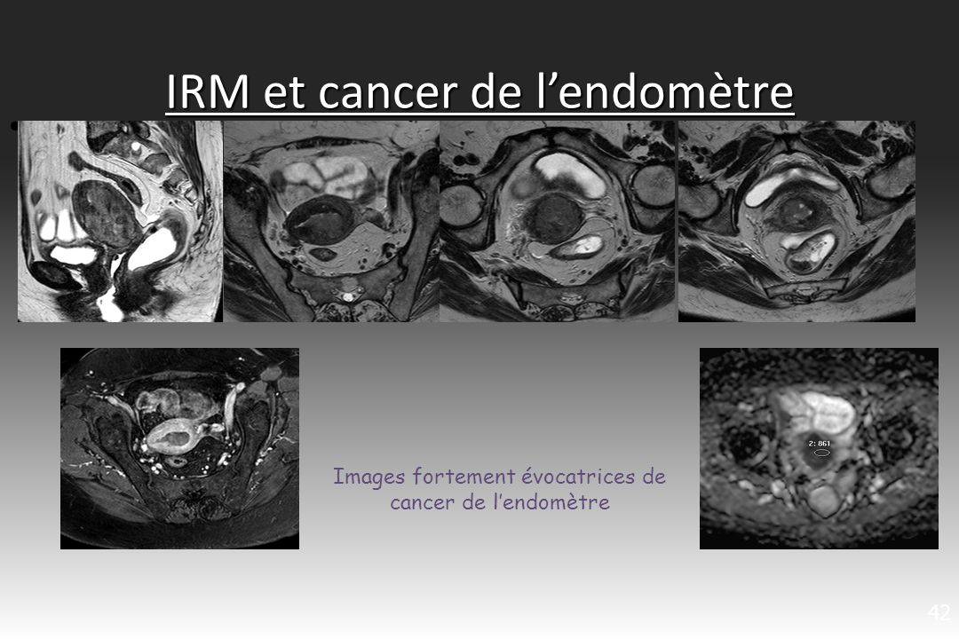 IRM et cancer de lendomètre 42 Images fortement évocatrices de cancer de lendomètre