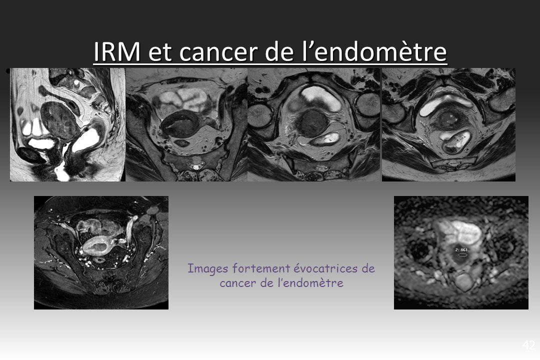 IRM et cancer de lendomètre LIRM sest progressivement imposée comme une technique pré- thérapeutique sûre pour établir le degré dextension locorégionale avec une fiabilité supérieure aux données de lexamen clinique, de léchographie ou du scanner (Yamashita 1993) La sensibilité de lIRM varie entre 83 et 91% pour lenvahissement du myomètre Les performances globales de lIRM pour latteinte cervicale sont satisfaisantes avec une sensibilité de 72 % et une spécificité de 93,2 % Meilleure sensibilité et spécificité que lEEV, lhystéroscopie ou le TDM 43