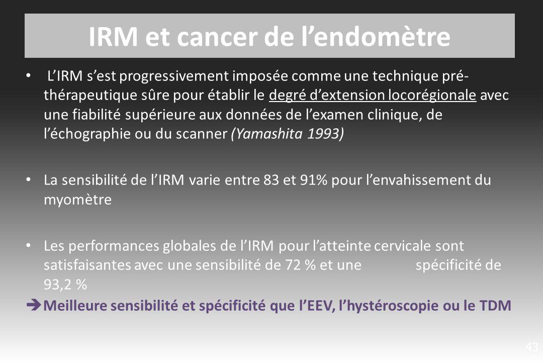 Bilan d extension ganglionnaire : TDM ou IRM .