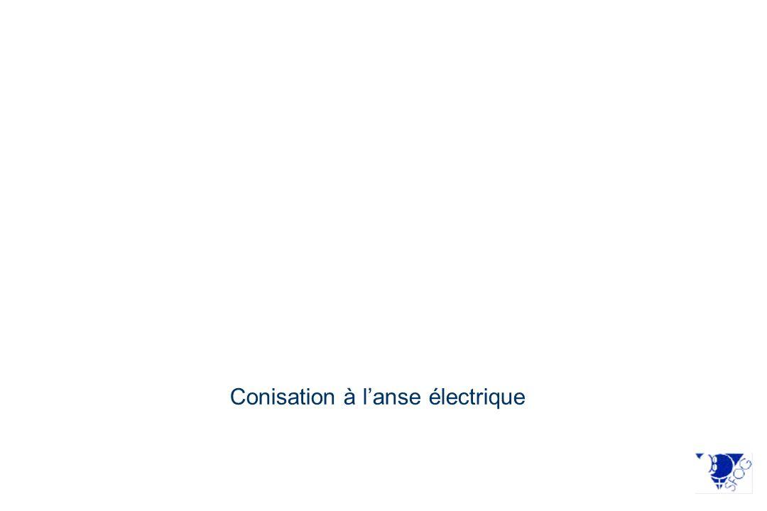 Conisation à lanse électrique