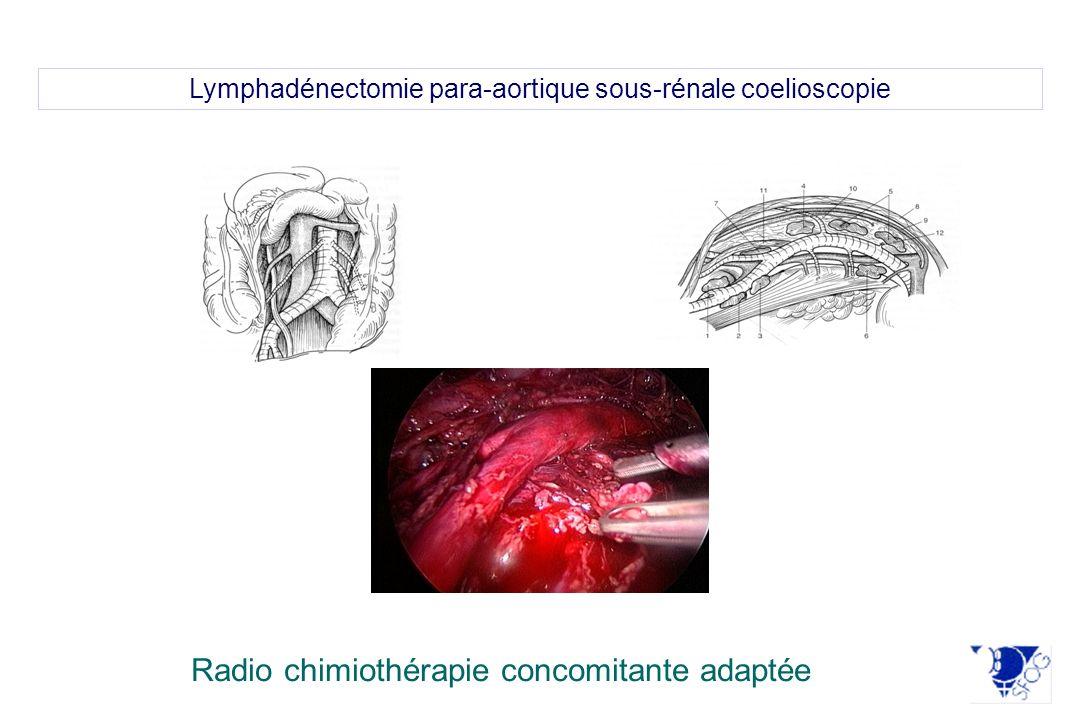 Lymphadénectomie para-aortique sous-rénale coelioscopie Radio chimiothérapie concomitante adaptée
