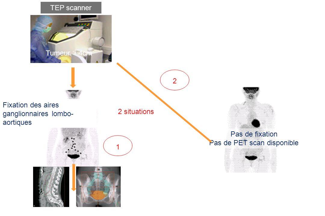 TEP scanner Pas de fixation Pas de PET scan disponible Tumeur > 4cm Fixation des aires ganglionnaires lombo- aortiques 2 situations 1 2