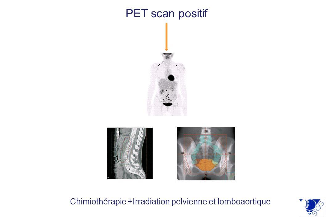 Tumeur > 4cm PET scan positif Chimiothérapie +Irradiation pelvienne et lomboaortique