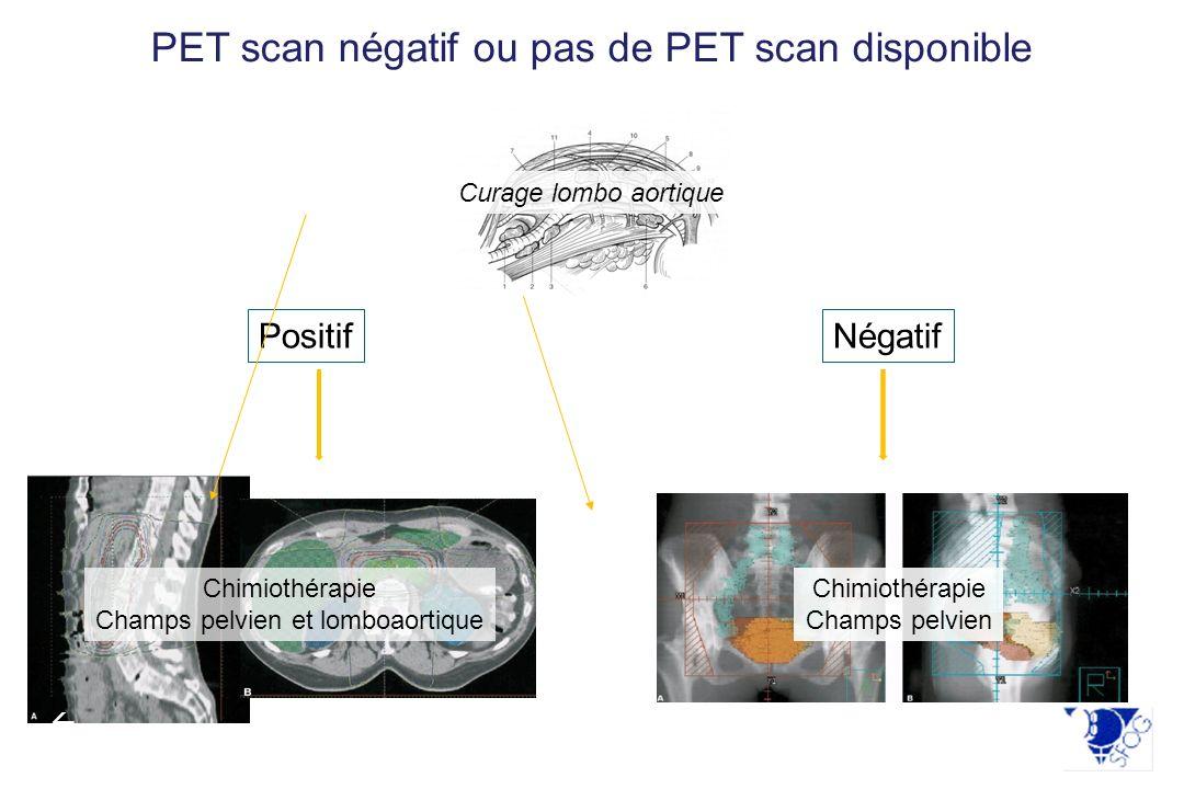 Chimiothérapie Champs pelvien et lomboaortique PositifNégatif Chimiothérapie Champs pelvien Curage lombo aortique PET scan négatif ou pas de PET scan