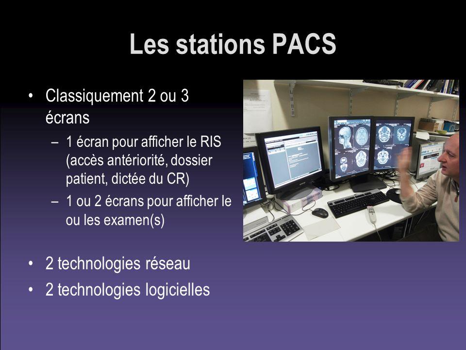 Les stations PACS Classiquement 2 ou 3 écrans –1 écran pour afficher le RIS (accès antériorité, dossier patient, dictée du CR) –1 ou 2 écrans pour aff